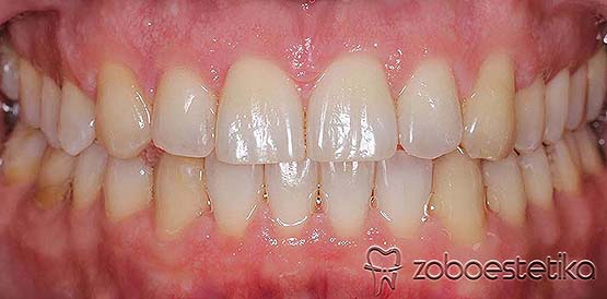 Ortodontsko zdravljenje razmika med zobmi z nevidnim zobnim aparatom Invisalign pri odraslem moškem.
