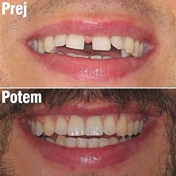 Ortodontsko zdravljenje diasteme z nevidnimi zobnimi opornicami Invisalign pri odraslemu moškemu (razmik med zobmi)
