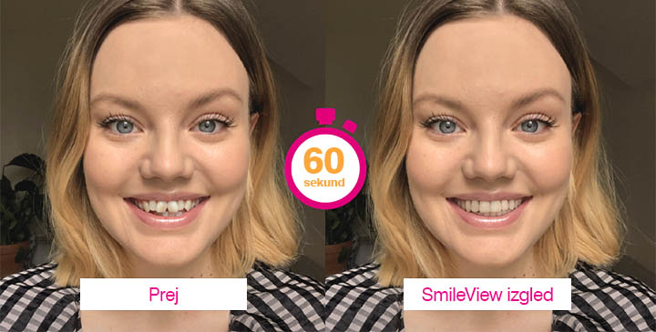 Simulacija vašega nasmeha - Prej in Potem | ZoboEstetika - Invisalign SmileView